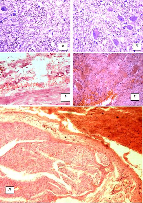 Нейронофагия фото