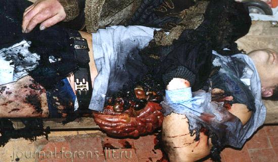 """Результат пошуку зображень за запитом """"смерть после взрыва ф1 фото"""""""